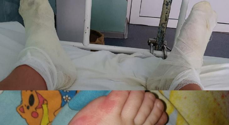 """""""Выносил детей на руках, шлепая по кипятку"""": в Рыбинске обварилась семья"""